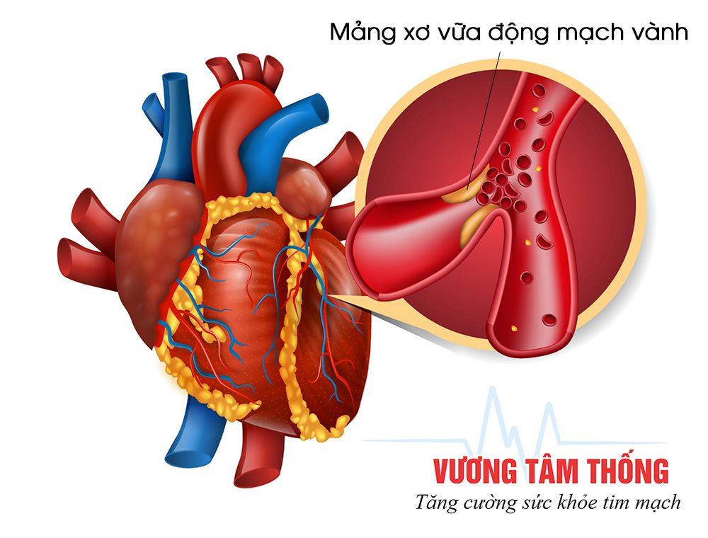 Xơ vữa động mạch là nguyên nhân chính gây bệnh mạch vành